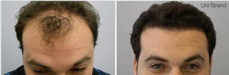 trasplante de pelo en estambul turquia